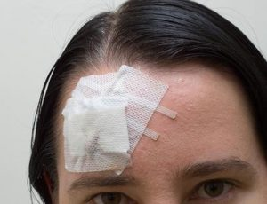 Head injury from a slip & fall personal injury lawsuit.